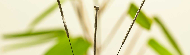 Scarborough Acupuncture